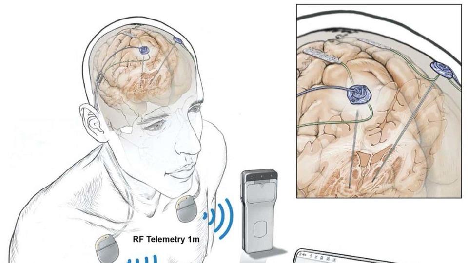 日常生活を送る人の脳活動をリモート監視できるデバイスが誕生